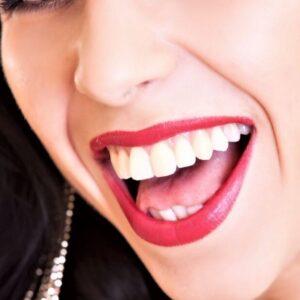 Hampaiden teholaservalkaisu. Varaa aika Cocodens Oy:n suosituimpaan hampaiden valkaisuun Jyväskylään.